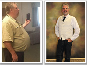 Patrick Moles weight loss with Ascension Sacred Heart Surgical Weight Loss Center.
